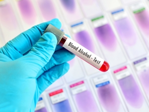 types of bac chemical tests